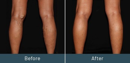 Before and after image of a Chuback Vein Treatment patient