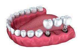 24790986_0_puente_sobre_implant.jpg