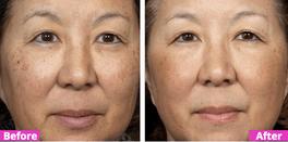 SkinTight Results Testimonial