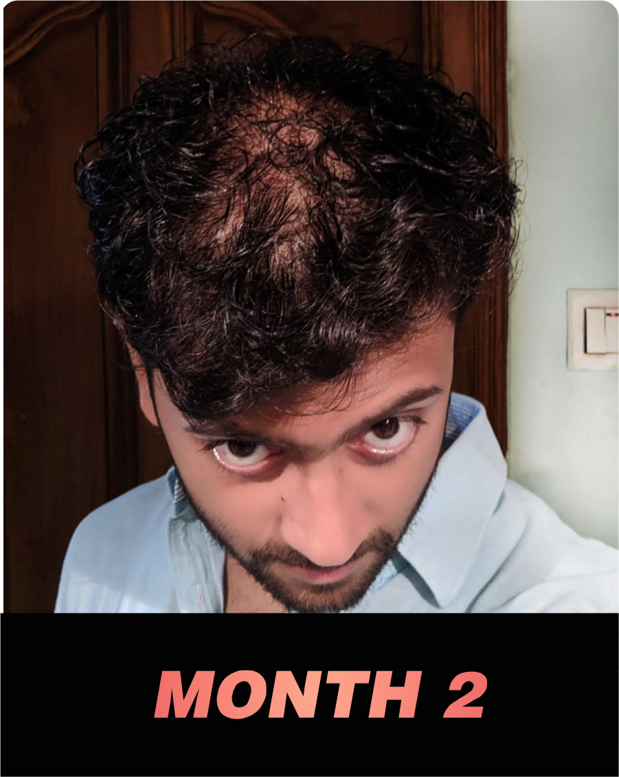 Nonu Founder's hair loss journey - month 2