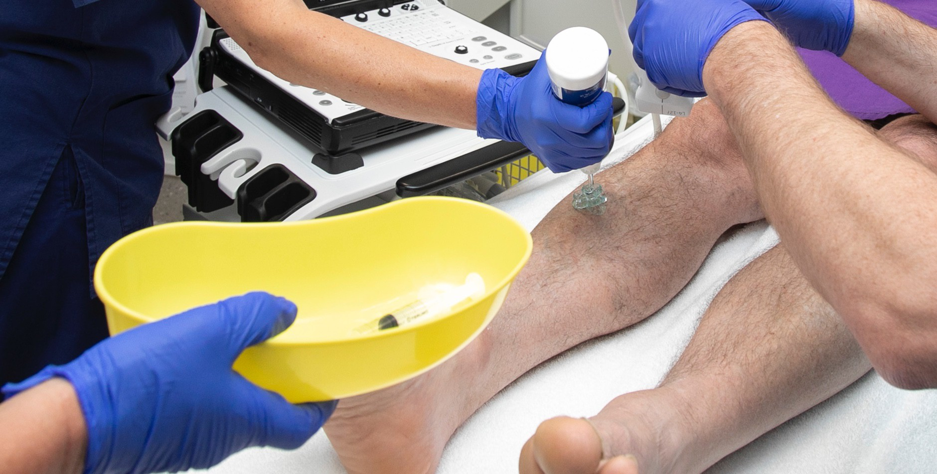Some varicose veins will be treated in as little as 15 minutes.