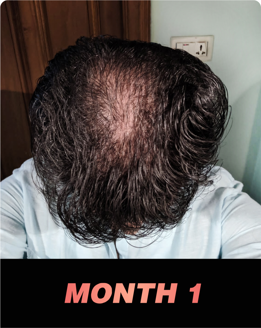 Nonu Founder's hair loss journey - month 1