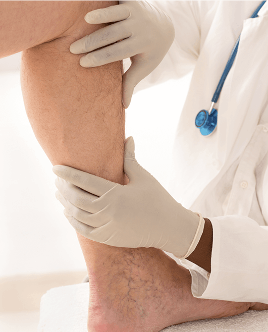 Doctor analyzing a patient's leg that suffers from vein disease