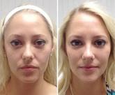 SkinTight Results Testimonial 3